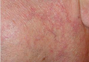 petit vaisseaux sanguins visage