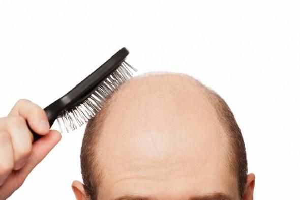 chute-cheveux-peigne.jpg-tt-width-590-height-393-fill-1-bgcolor-FFFFFF