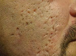 comment-enlever-les-cicatrices-d'acné
